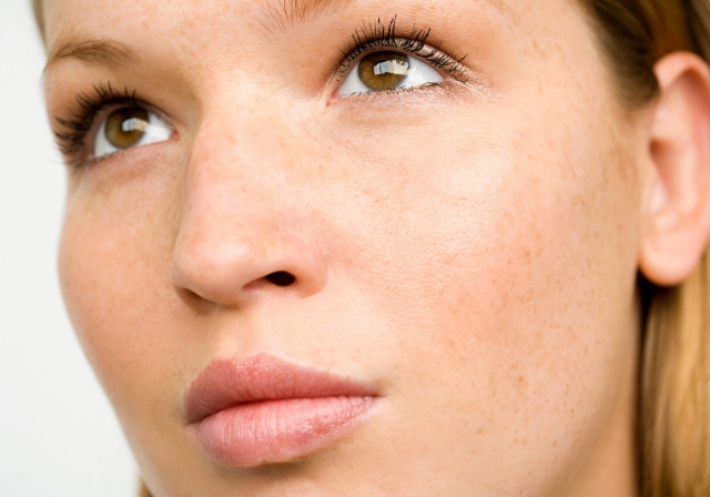 woman who has treated hyperpigmentation